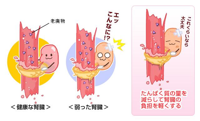 腎臓病食 どうして低たんぱく食